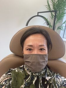 Asian American woman wearing a face mask with white markings on her face to guide a nurse for Botox injections.